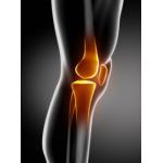 Articulations et inflammation